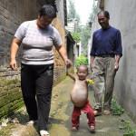 Criança de um ano grávida na China