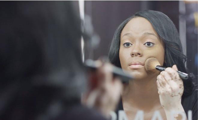 mulher vitiligo