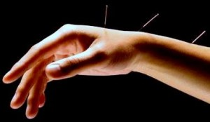 acupuntura para depressão